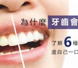 為什麼牙齒會變黃- 了解6種黃牙成因,再選擇健康的牙齒美白方法