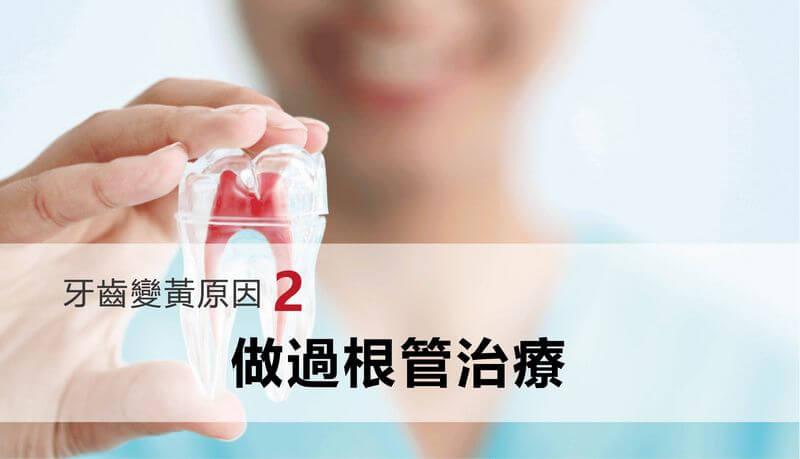 牙齒變黃原因-根管治療導致牙齒鈣化