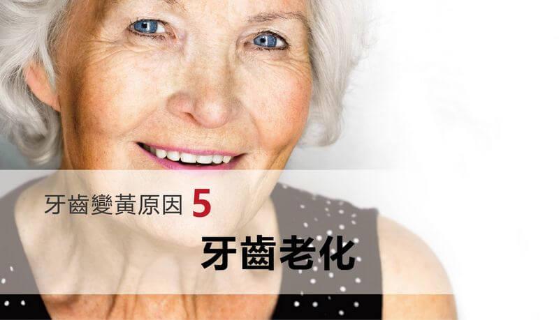 牙齒變黃原因-牙齒老化