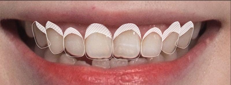 使用牙齦微整型與牙冠增長術解決笑齦及牙齒過短問題