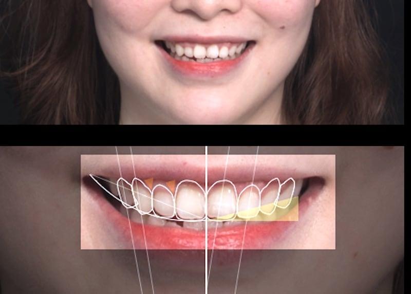 用DSD數位微笑設計系統收集的美學資訊
