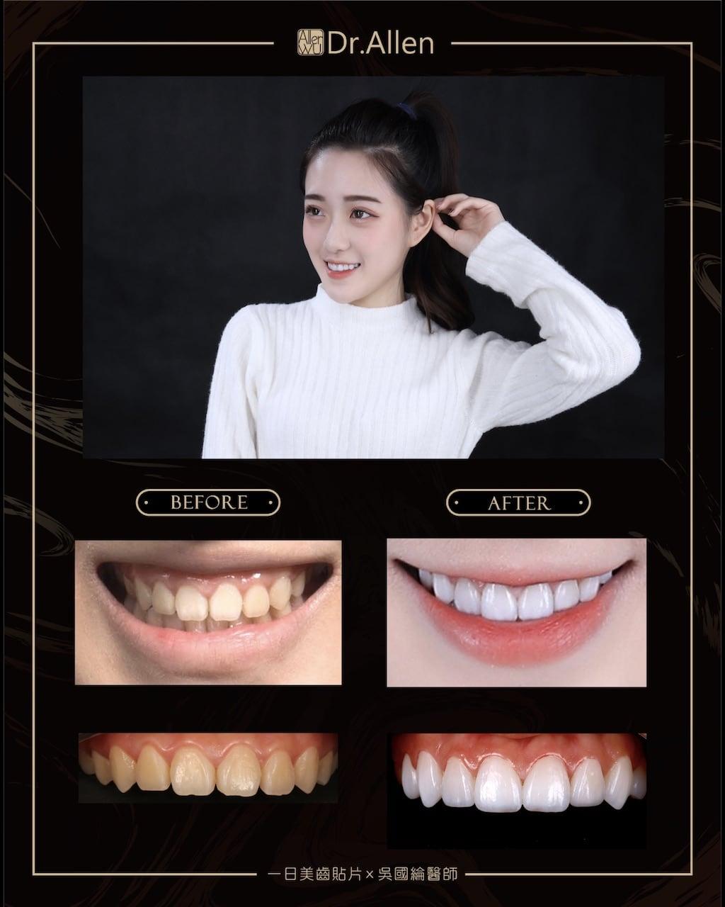 超薄陶瓷貼片-台中牙齒美白貼片推薦牙醫吳國綸醫師-女神牙齒美白心得