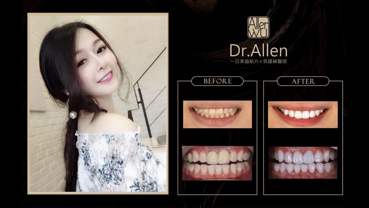 陶瓷貼片-台中牙齒美白貼片推薦牙醫吳國綸醫師-瓷牙貼片心得