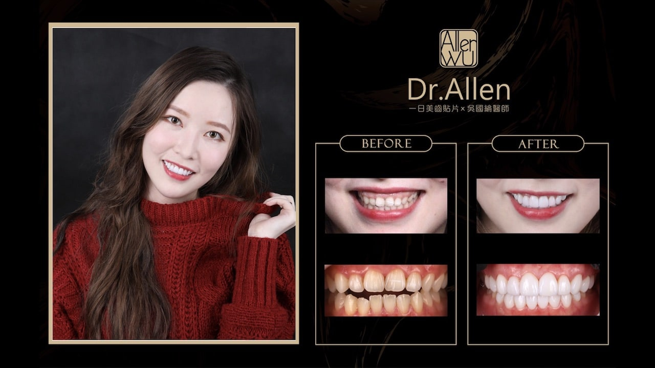 陶瓷貼片-台中牙齒美白貼片推薦牙醫-吳國綸醫師-牙齒美白心得