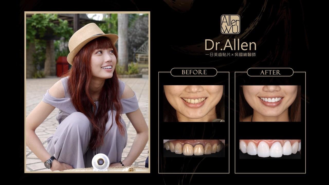 陶瓷貼片-台中牙齒美白貼片推薦牙醫-吳國綸醫師-瓷牙貼片心得-案例1