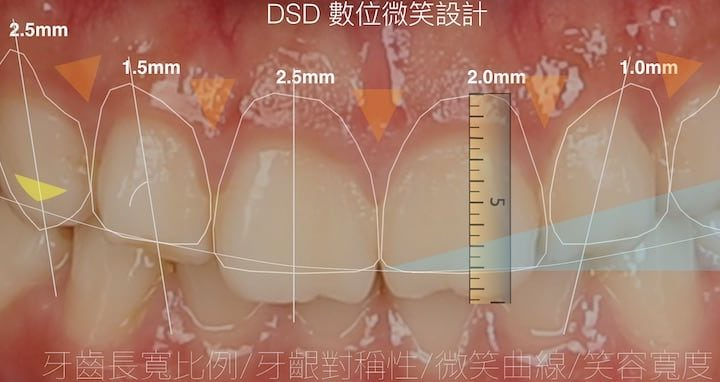 DSD數位微笑設計將牙科各變數數字化-協助牙醫師分析溝通設計及試戴檢驗