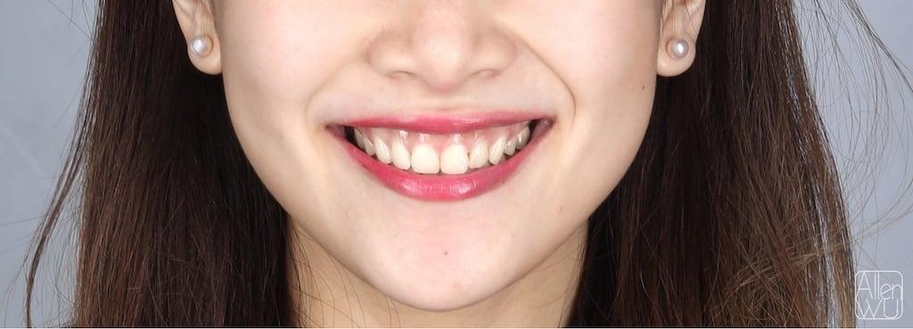 牙齒美白貼片-DSD數位微笑設計案例-微笑曲線-術前