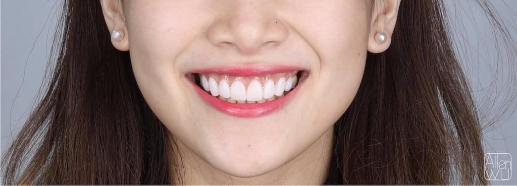 牙齒美白貼片-DSD數位微笑設計案例-微笑曲線-術後