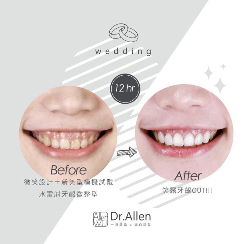 水雷射牙齦整形-陶瓷貼片-牙齒美白-療程前後比較