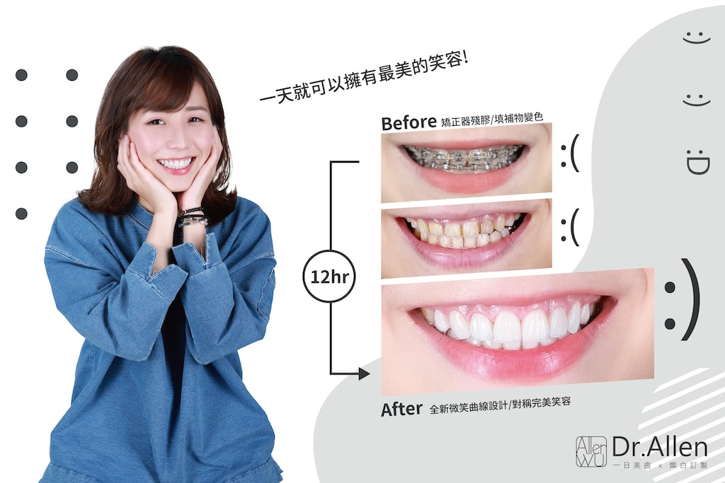 瓷牙貼片-牙齦微整型-牙齒矯正後美白-一日美齒-台中陶瓷貼片-推薦-吳國綸醫師