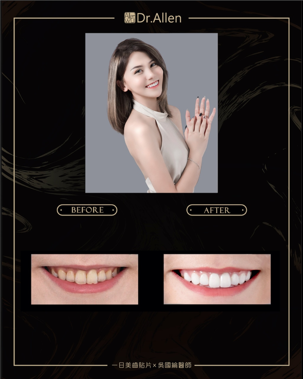 陶瓷貼片推薦案例-吳國綸醫師-台中-蕾菈-2021