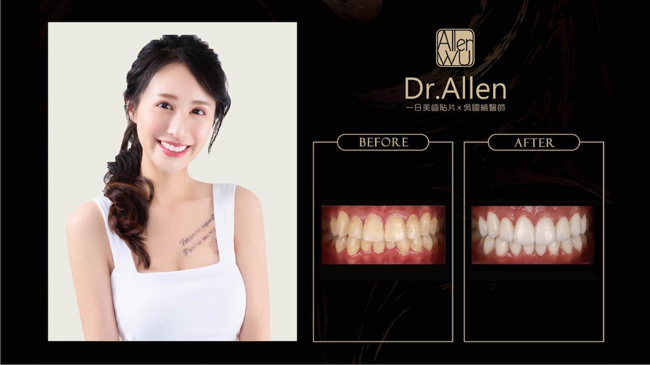 陶瓷貼片推薦案例-吳國綸醫師-台中-molly-2021