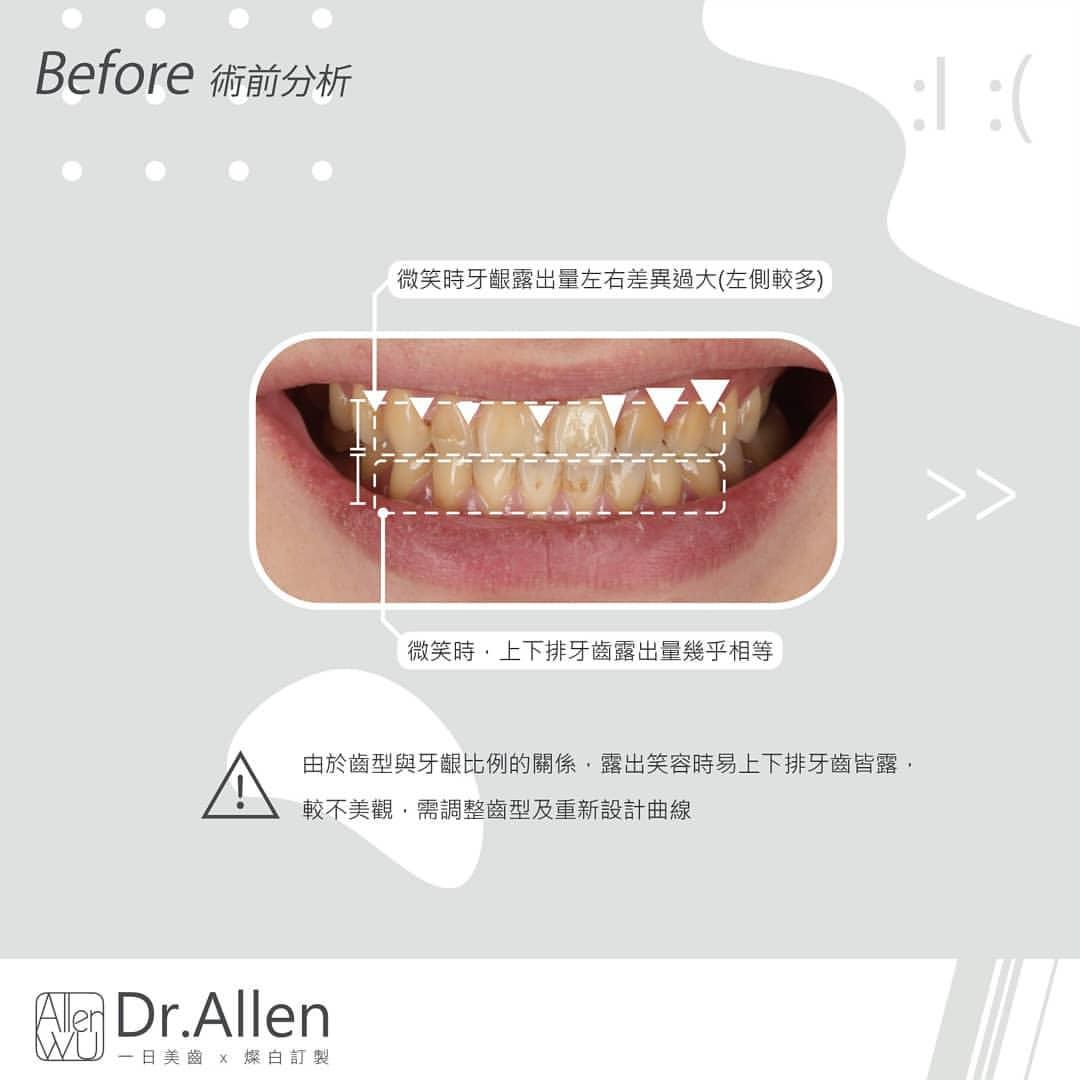 陶瓷貼片案例-療程前-牙齒形狀-牙齦比例不佳