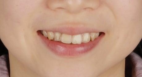 牙齒美白貼片-牙齒矯正-牙齒整形優缺點-患者有上門牙暴牙虎牙旋轉問題-牙齒整形前照