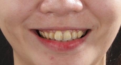 牙齒美白貼片-牙齒矯正-牙齒整形優缺點-患者有門牙暴牙虎牙內旋後縮問題-牙齒整形前照