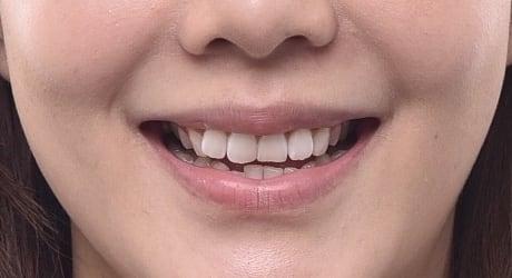 牙齒美白貼片-牙齒矯正-牙齒整形優缺點-患者有門牙歪斜虎牙內旋後縮問題-牙齒整形前照