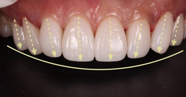 牙齒美白貼片-牙齒矯正-牙齒整形優缺點-患者用陶瓷貼片與數位全瓷冠調整門牙走向長度