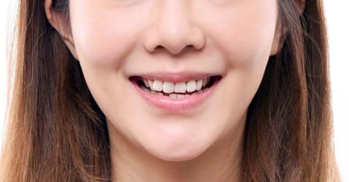 牙齒美白貼片-牙齒矯正-牙齒整形優缺點-採用陶瓷貼片與數位全瓷冠當天改善牙齒不整並同時牙齒美白-療程前