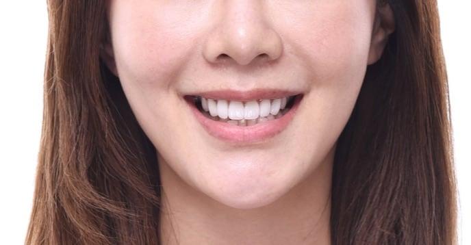 牙齒美白貼片-牙齒矯正-牙齒整形優缺點-採用陶瓷貼片與數位全瓷冠當天改善牙齒不整並同時牙齒美白-療程後