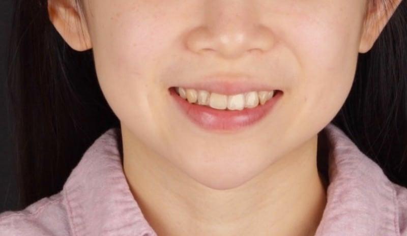 牙齒美白貼片-牙齒矯正-牙齒整形優缺點-採用DSD數位微笑分析與陶瓷貼片快速完成牙齒矯正與牙齒美白-患者術前照