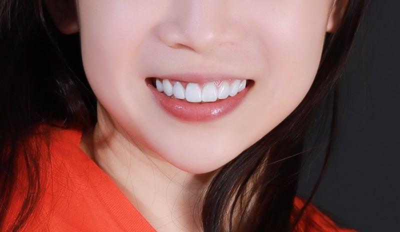 牙齒美白貼片-牙齒矯正-牙齒整形優缺點-採用DSD數位微笑分析與陶瓷貼片快速完成牙齒矯正與牙齒美白-患者術後照