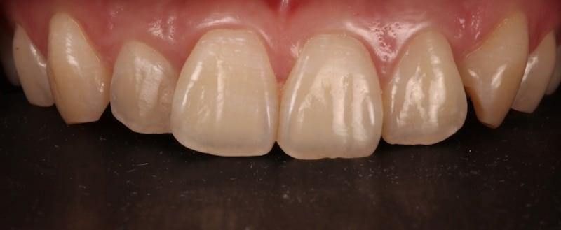 牙齒美白貼片-牙齒矯正-牙齒整形優缺點-採用DSD數位微笑分析與陶瓷貼片快速完成牙齒矯正與牙齒美白-療程前