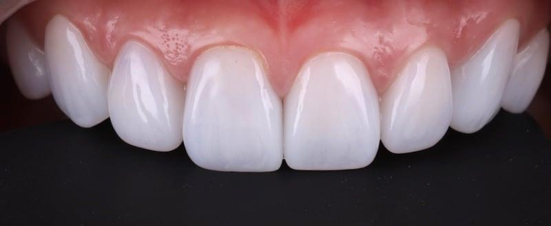 牙齒美白貼片-牙齒矯正-牙齒整形優缺點-採用DSD數位微笑分析與陶瓷貼片快速完成牙齒矯正與牙齒美白-療程後