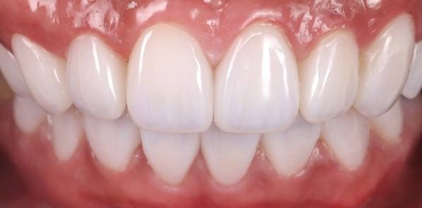 牙齒美白貼片-牙齒矯正-牙齒整形優缺點-門牙區使用數位全瓷冠搭配中段陶瓷貼片共十六顆解決暴牙問題