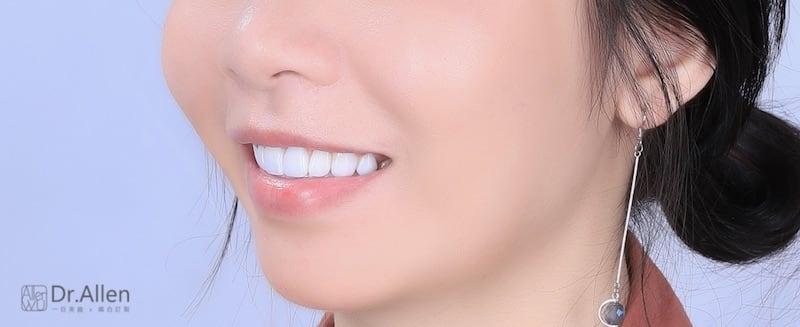牙齒美白貼片-牙齒矯正-牙齒整形優缺點-門牙區使用數位全瓷冠搭配中段陶瓷貼片大幅改變排列不整與暴牙-患者術後照