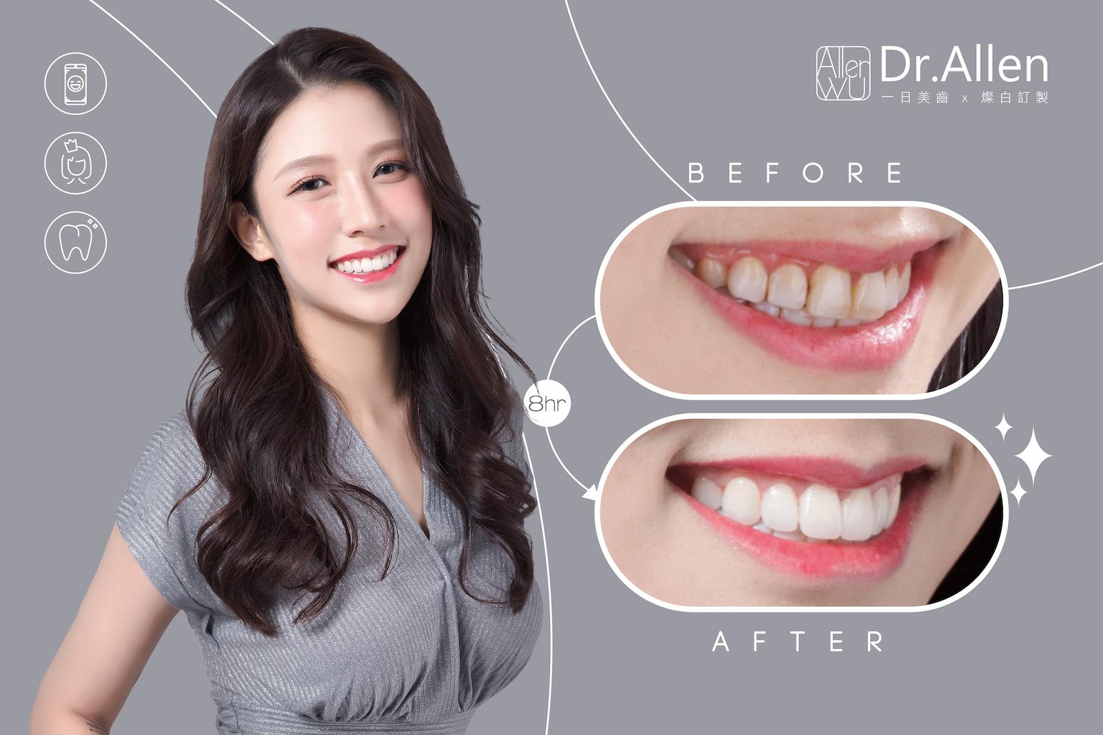 吳國綸醫師-陶瓷貼片-牙齒美白貼片-推薦