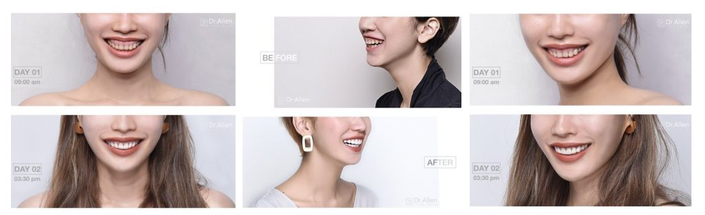 牙冠增長術-牙齦外露-陶瓷貼片-台中牙醫-吳國綸牙醫