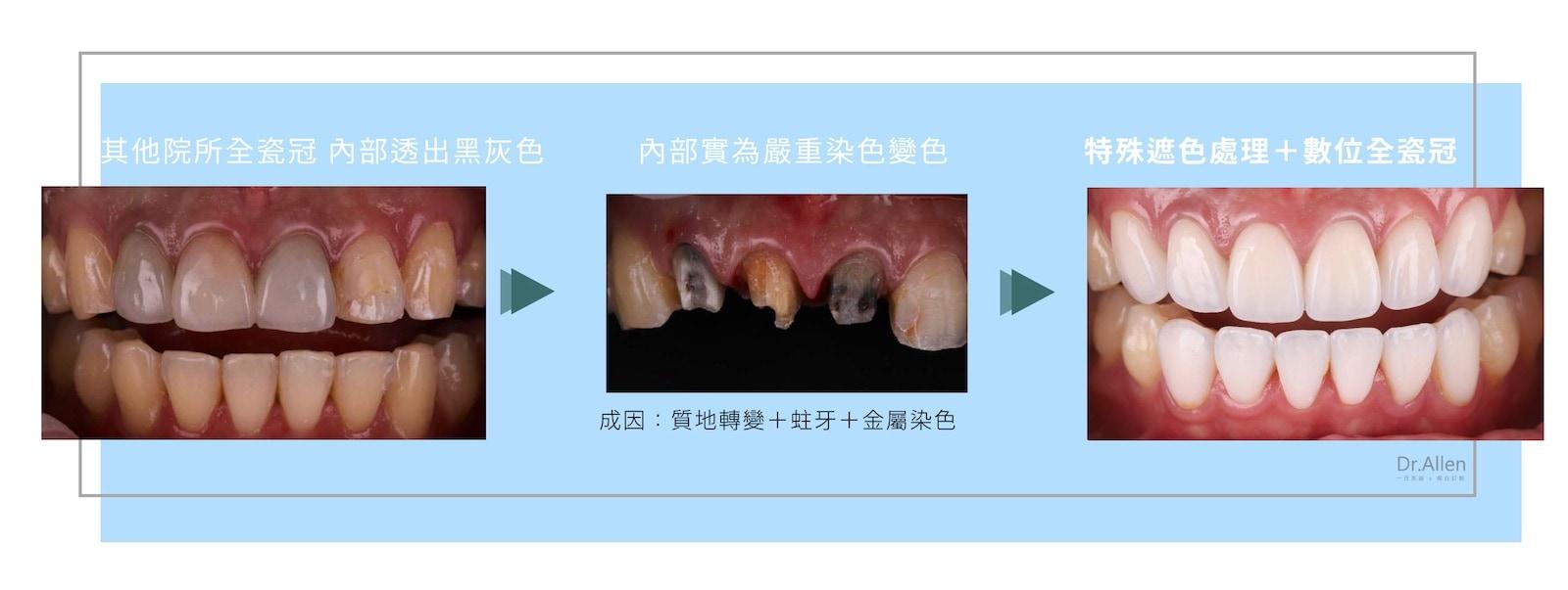 牙齒變色-遮色處理-全瓷冠-陶瓷貼片-價格-台中牙醫推薦