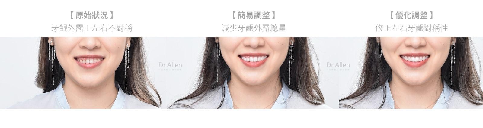 牙齦整形-牙齦外露-陶瓷貼片-台中牙醫