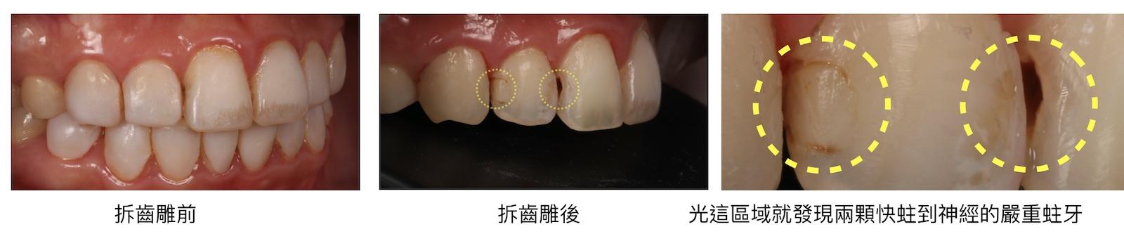美白齒雕失敗-美白齒雕缺點-拆齒雕後-蛀牙-齒雕後遺症