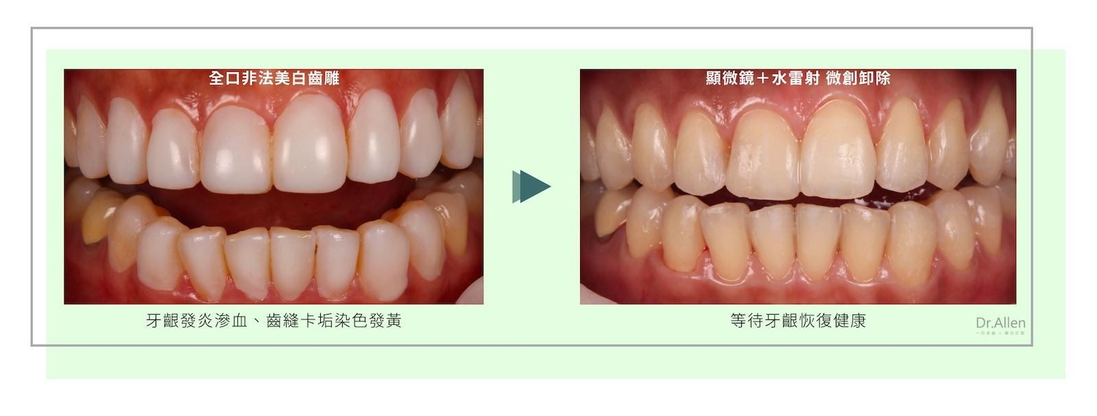 美白齒雕-失敗-拆除-陶瓷貼片-台中牙醫-吳國綸醫師