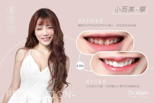陶瓷貼片-台中牙醫-吳國綸醫師-推薦-FIFI