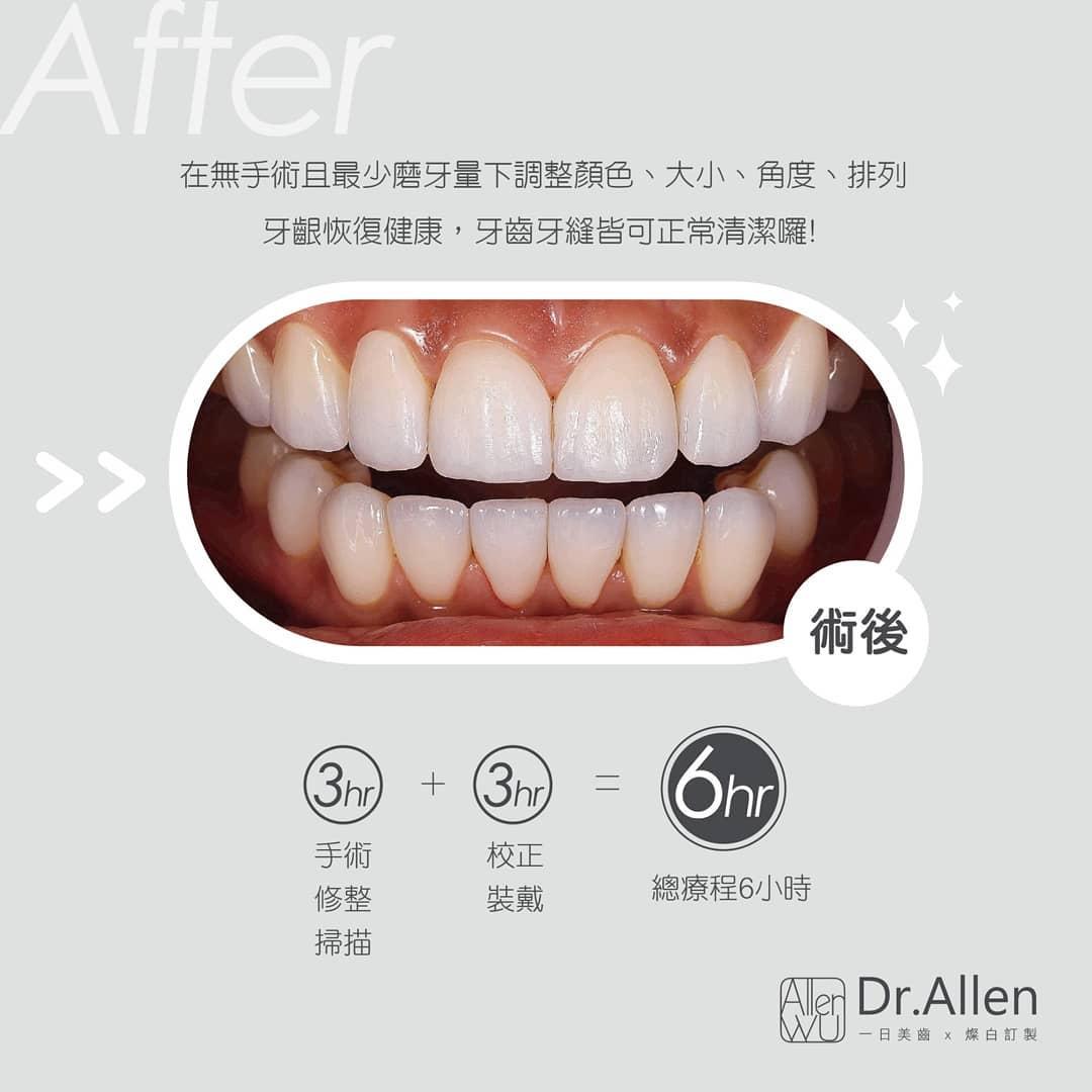 牙齒貼片失敗案例-拆除不良美白齒雕-更換正規陶瓷貼片