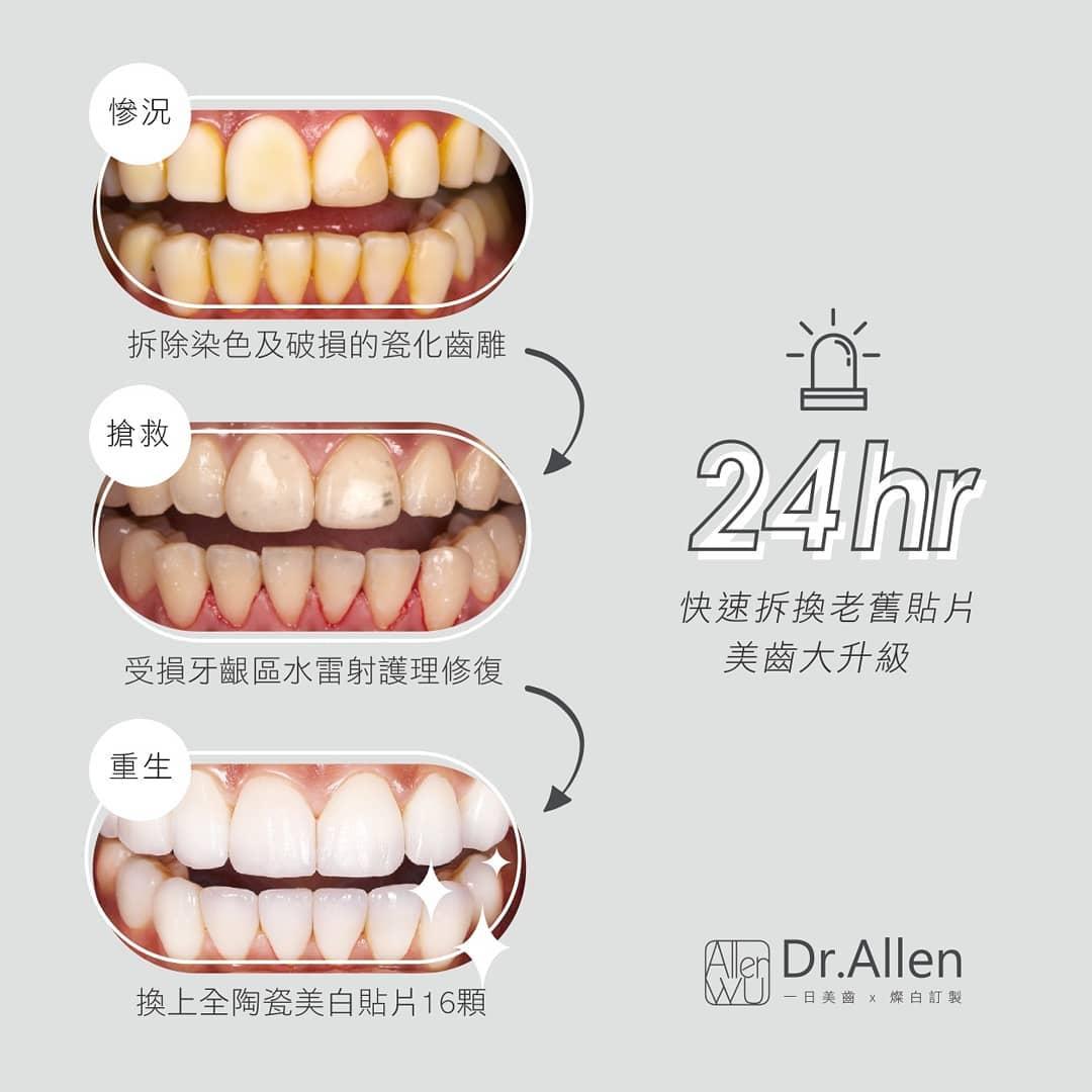 牙齒貼片失敗案例-拆除不良美白齒雕-更換陶瓷貼片
