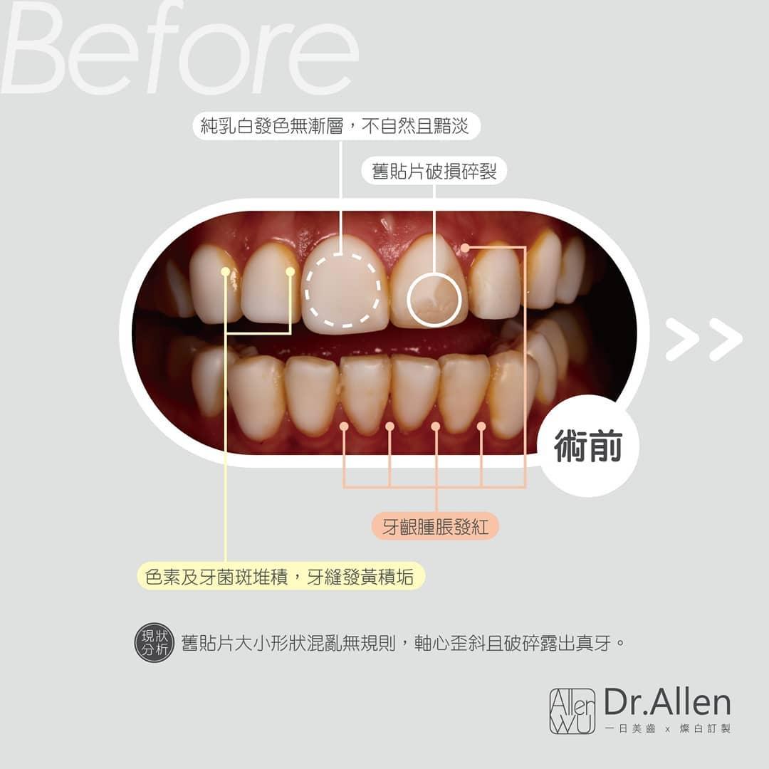 牙齒貼片失敗案例-非法美白齒雕-樹脂貼片-拆除前-貼片破損-顏色死白-牙齦紅腫