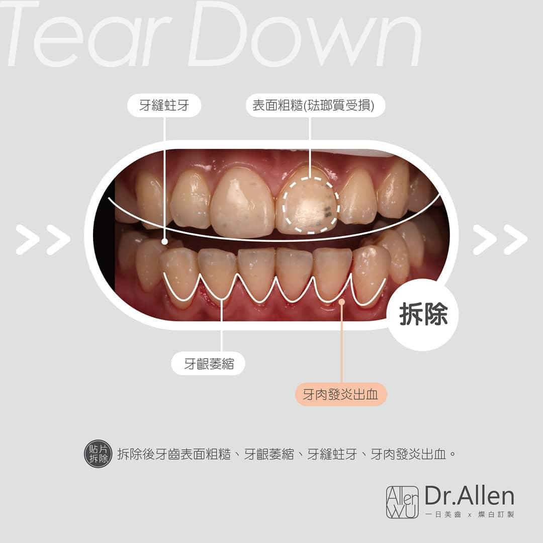 牙齒貼片失敗案例-非法美白齒雕-樹脂貼片-拆除後-牙齦萎縮-蛀牙-牙肉發炎出血