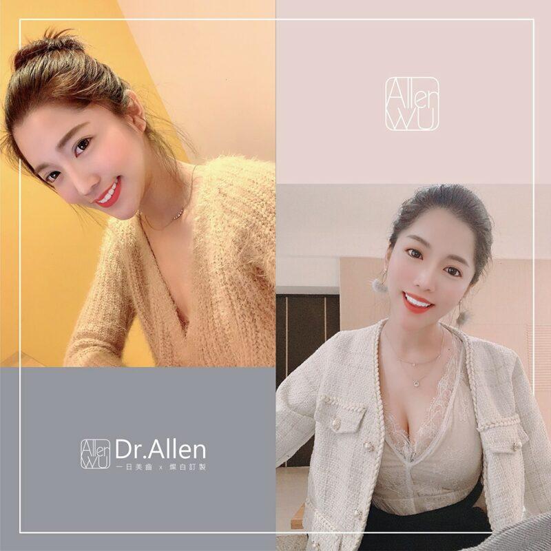 兩日內完成美齒貼片的模特兒莎莎-台中陶瓷貼片-推薦-吳國綸醫師