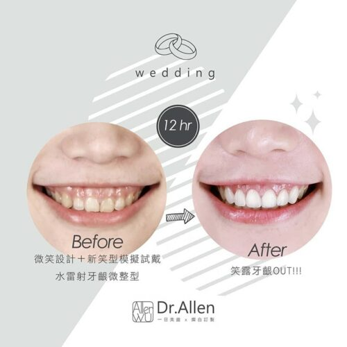 陶瓷貼片案例-陶瓷貼片一日矯正前後對比-水雷射牙齦整型-牙齒黃-輕微暴牙-牙齒比例偏方-笑露牙齦-上排6顆陶瓷貼片-一日美齒-台中美齒貼片推薦-吳國綸醫師