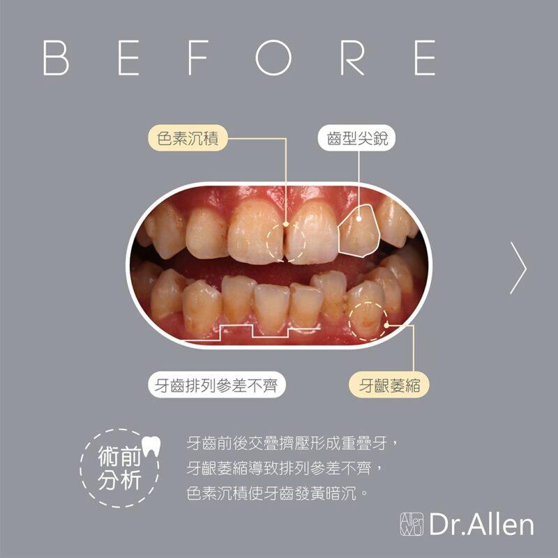 陶瓷貼片療程前-牙齒黃-齒列不整-牙齦萎縮-牙齒形狀尖銳
