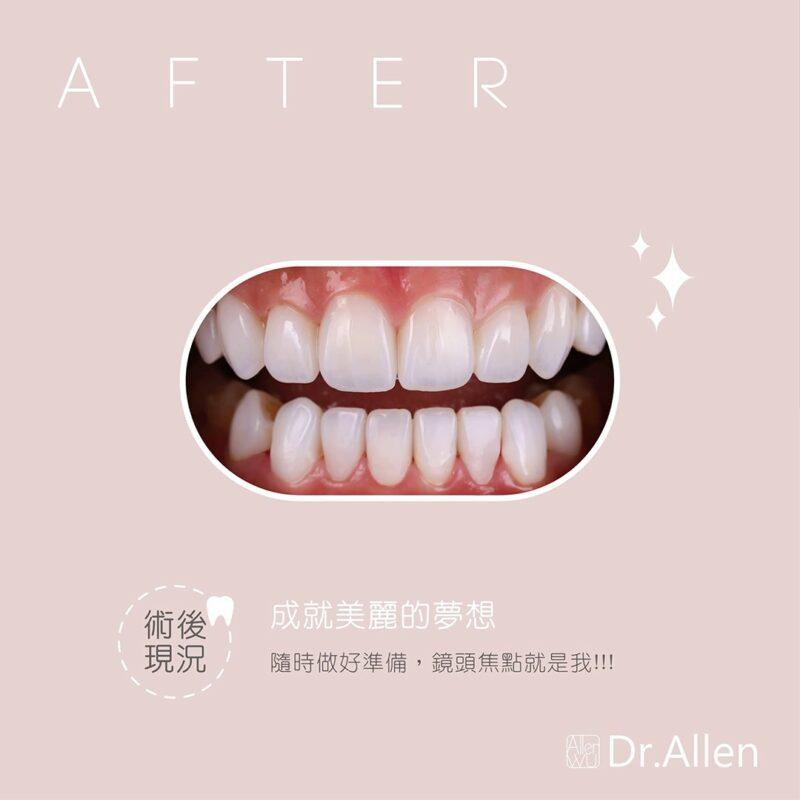 陶瓷貼片療程後-16顆美齒貼片-DSD數位微笑設計分析-水雷射牙齦整形