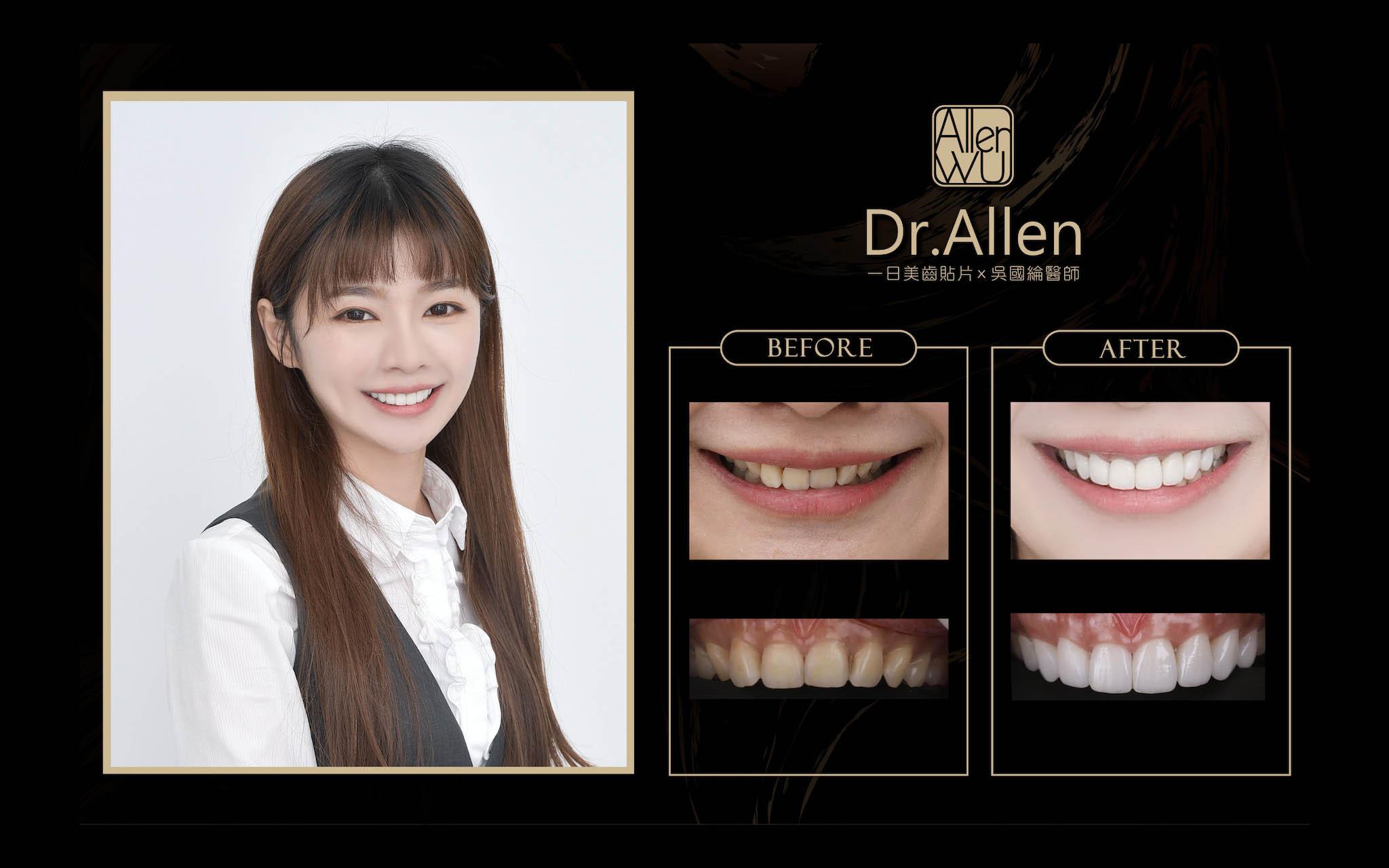 陶瓷貼片-微笑設計-台中陶瓷貼片推薦-吳國綸醫師