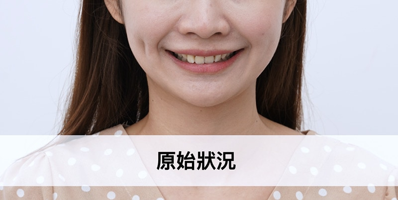 陶瓷貼片-微笑設計-案例-原始笑容