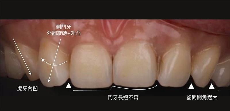 陶瓷貼片-微笑設計-案例-牙齒不整齊-牙齒歪斜-牙齒旋轉-門牙長度不一-齒間開角過大