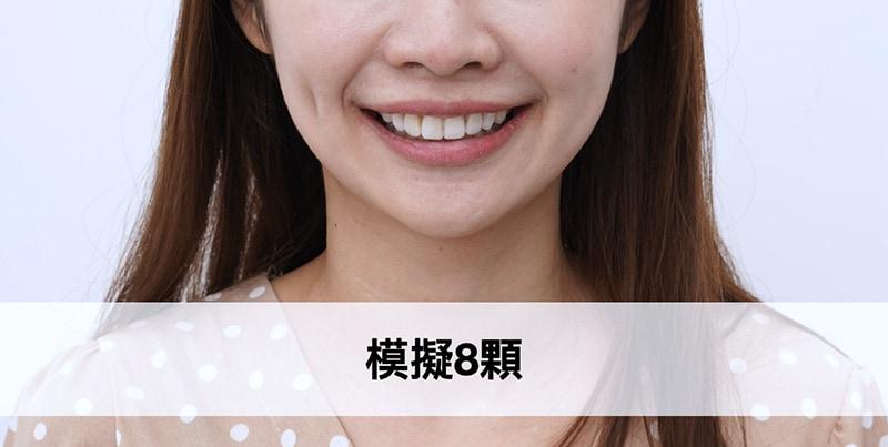 陶瓷貼片-微笑設計-標準方案-模擬8顆貼片