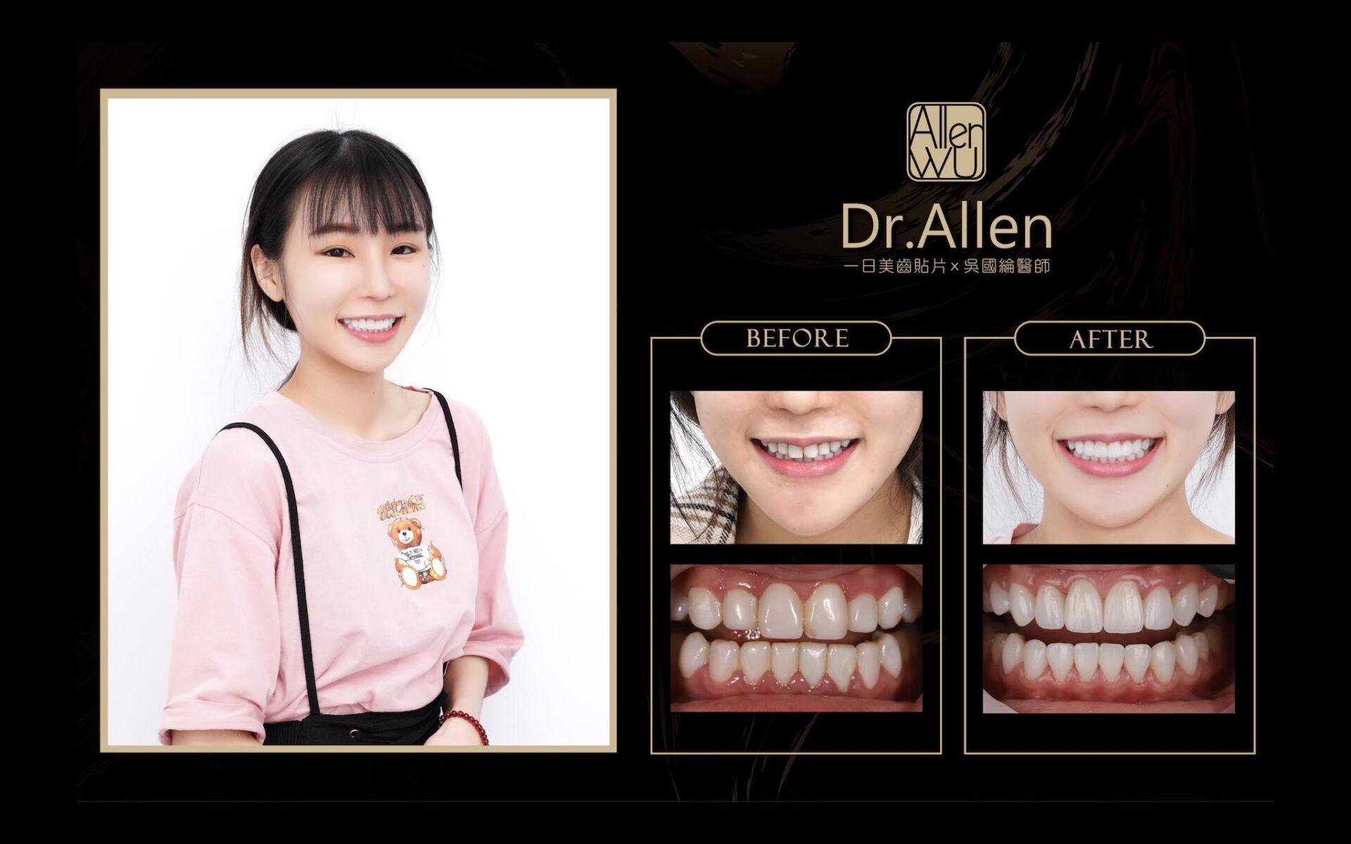 齒雕美白-牙齒貼片-台中陶瓷貼片推薦-吳國綸醫師