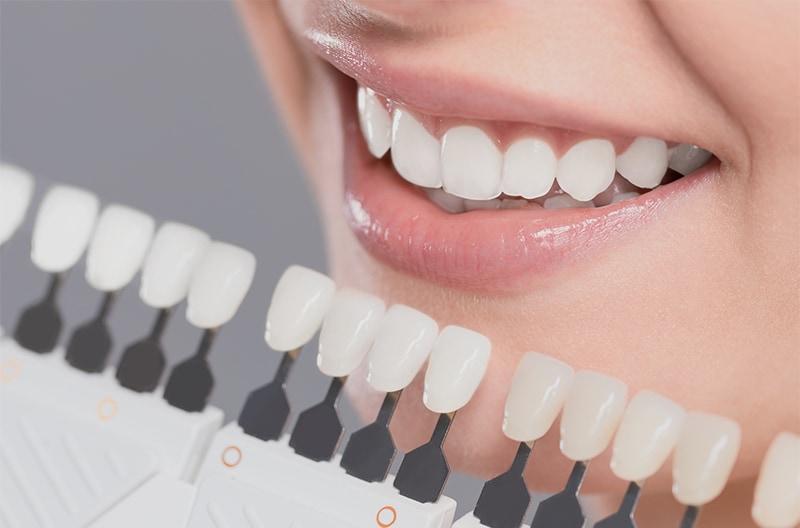 陶瓷貼片-瓷牙貼片-台中陶瓷貼片-推薦-牙醫-吳國綸醫師
